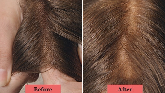 bleaching knots before and after